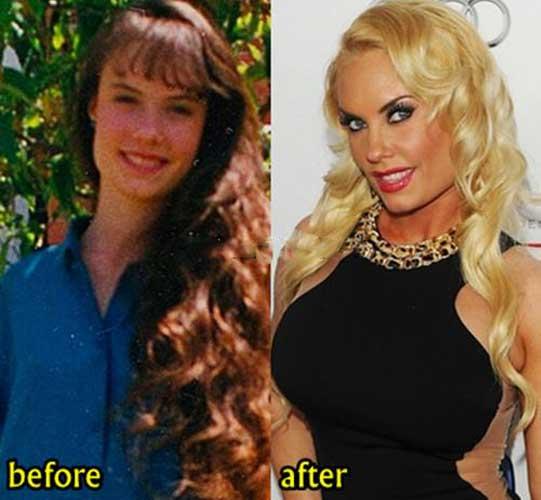 Coco Austin plastic surgery