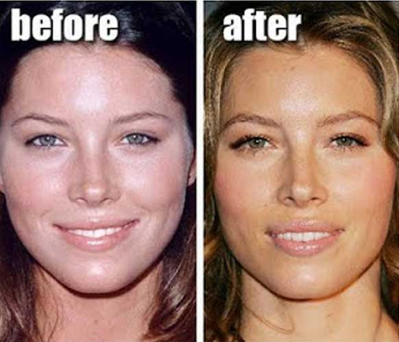 Jessica Biel Plastic Surgery