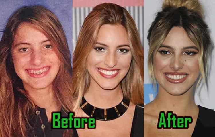 Lele Pons plastic surgery