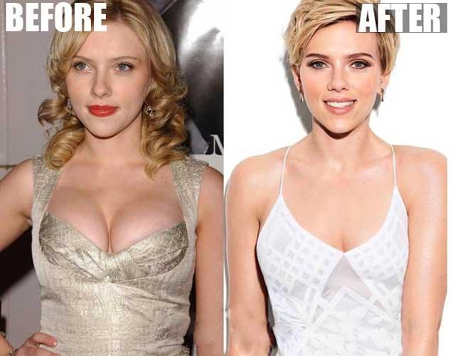 Scarlett Johansson Plastic Surgery Breast Reduction