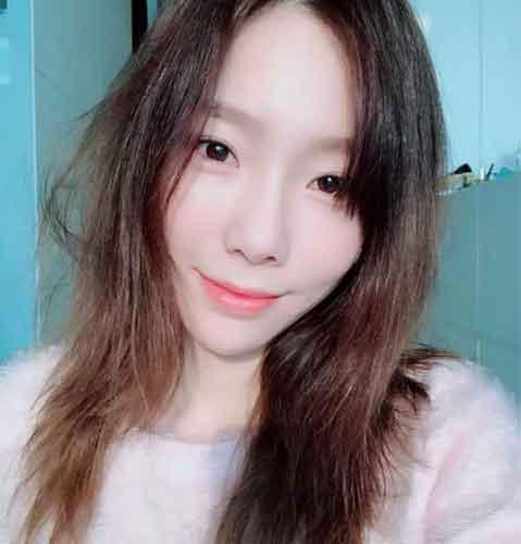 Kim Taeyeon plastic surgery