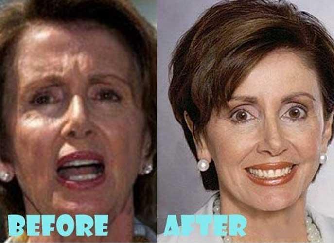 Nancy Pelosi Plastic Surgery