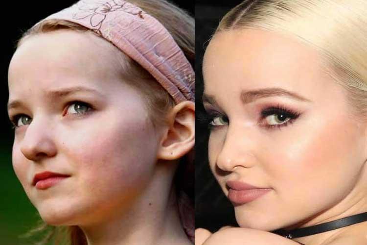 dove cameron before plastic surgery