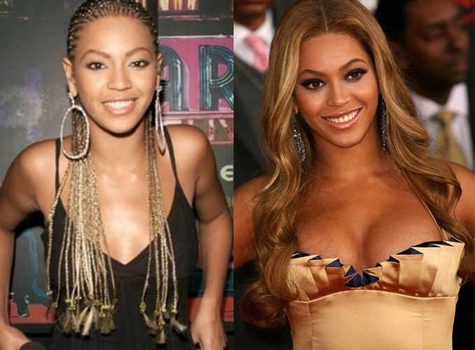 Beyonce Plastic Surgery
