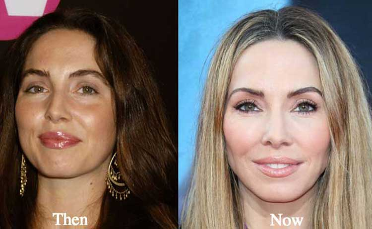 Whitney Cummings Plastic Surgery