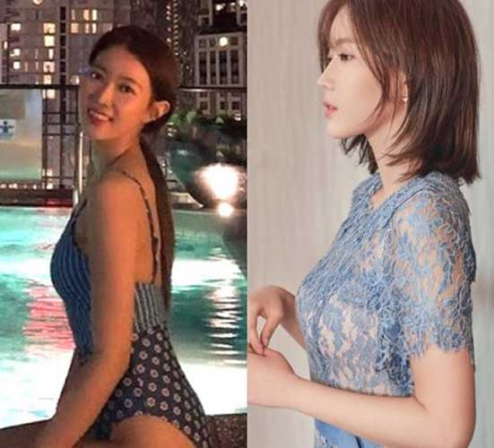 Im Soo Hyang before and after
